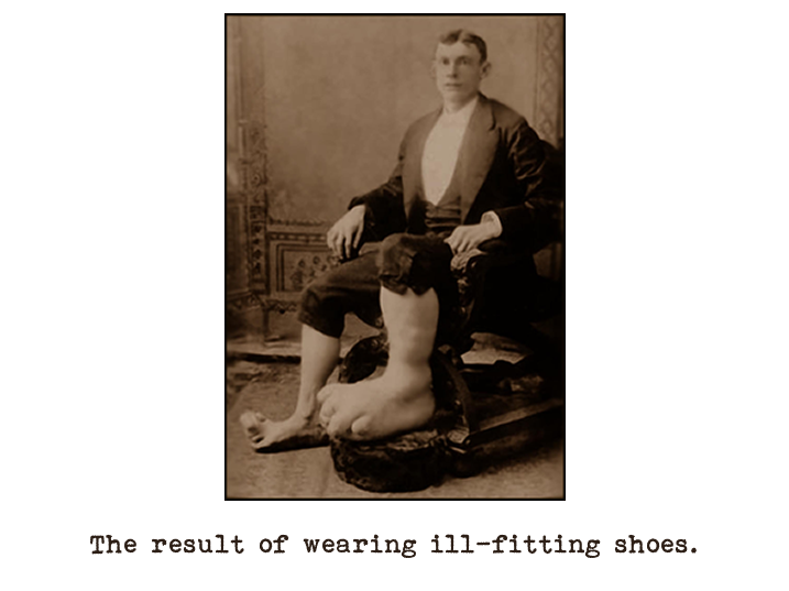 Black and white photograph of a man sitting in a chair dressed in a dinner suit with his trousers rolled up revealing deformed feet and lower legs.  Captioned: The result of wearing ill-fitting shoes.